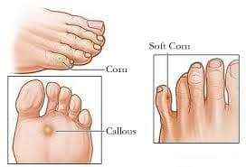 Examples of Corns and Callouses